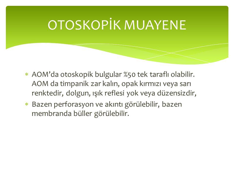  AOM'da otoskopik bulgular %50 tek taraflı olabilir.