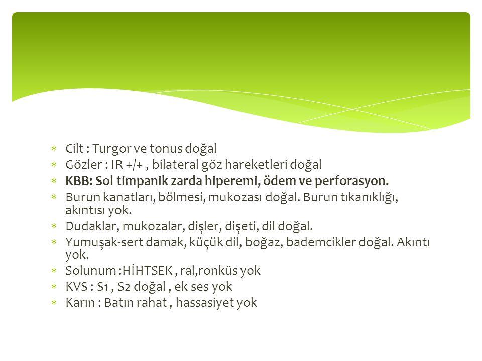  Cilt : Turgor ve tonus doğal  Gözler : IR +/+, bilateral göz hareketleri doğal  KBB: Sol timpanik zarda hiperemi, ödem ve perforasyon.