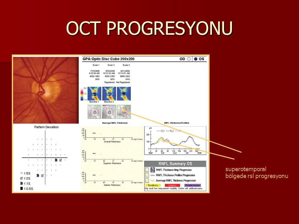 OCT PROGRESYONU superotemporal bölgede rsl progresyonu