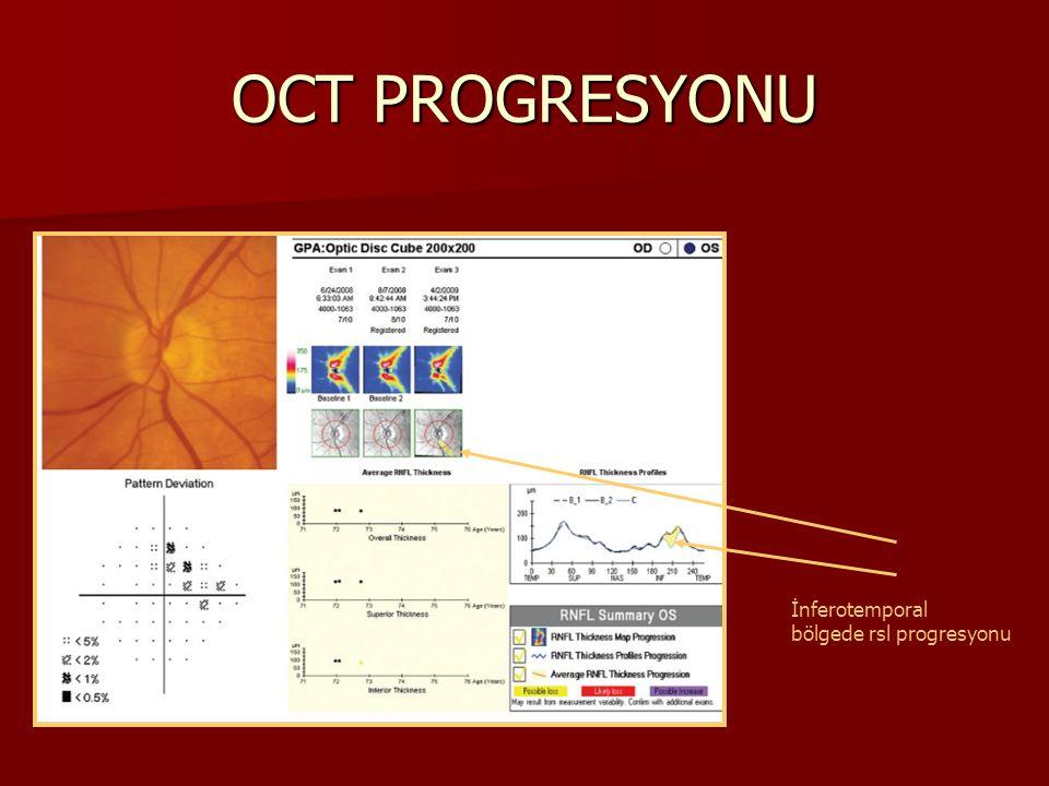 OCT PROGRESYONU İnferotemporal bölgede rsl progresyonu