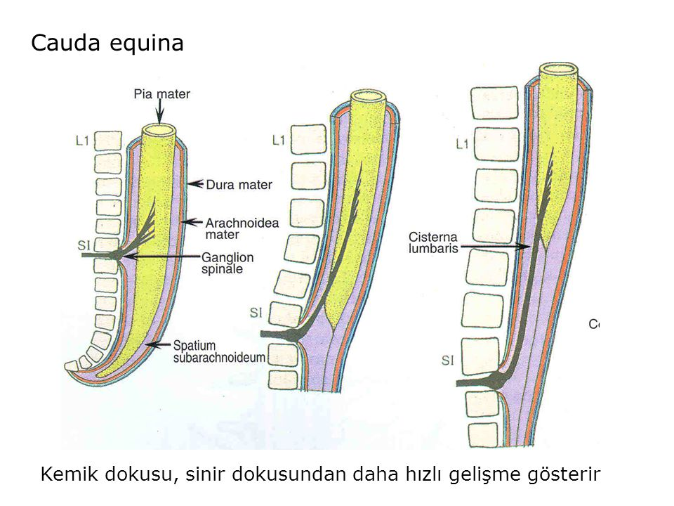 Cauda equina Kemik dokusu, sinir dokusundan daha hızlı gelişme gösterir
