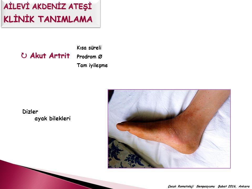  Akut Artrit Kısa süreli Prodrom Ø Tam iyileşme Dizler ayak bilekleri Çocuk Romatoloji Sempozyumu Şubat 2016, Ankara AİLEVİ AKDENİZ ATEŞİ KLİNİK TANI