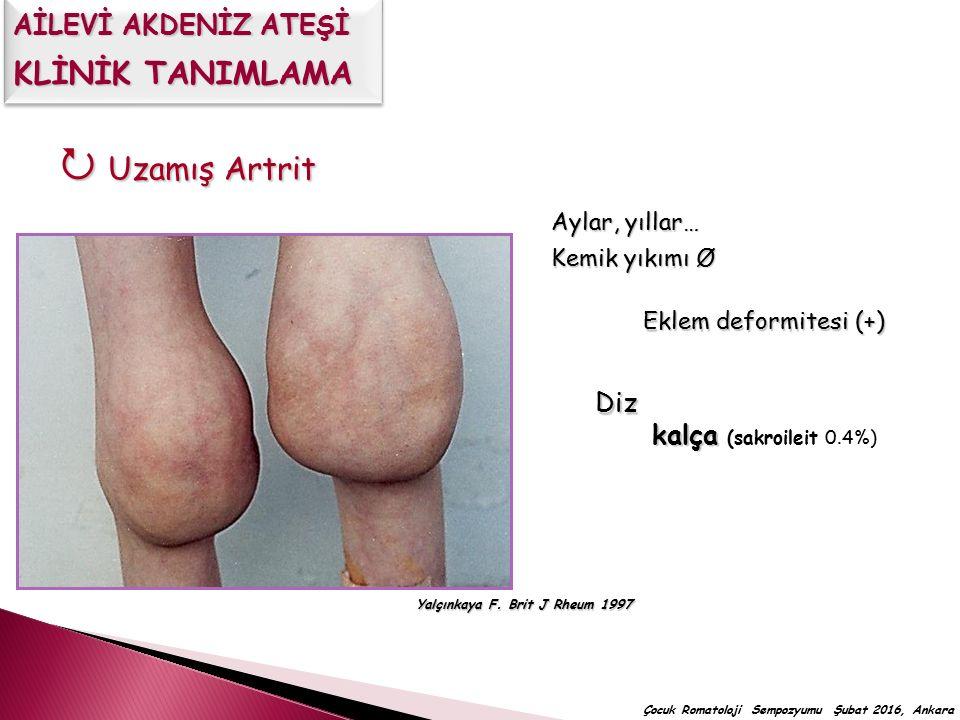  Uzamış Artrit Aylar, yıllar… Kemik yıkımı Ø Diz kalça kalça (sakroileit 0.4%) Yalçınkaya F. Brit J Rheum 1997 Eklem deformitesi (+) Çocuk Romatoloji