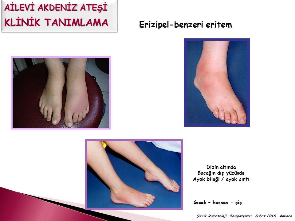 Erizipel-benzeri eritem Sıcak – hassas - şiş Dizin altında Bacağın dış yüzünde Ayak bileği / ayak sırtı Çocuk Romatoloji Sempozyumu Şubat 2016, Ankara