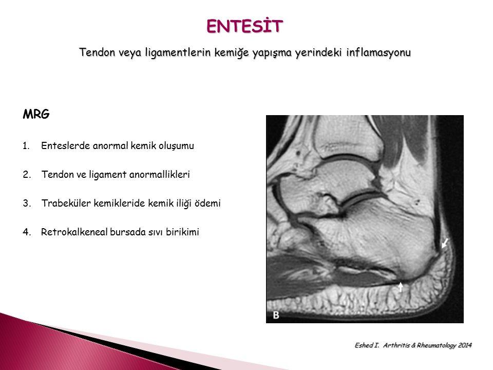 ENTESİT Tendon veya ligamentlerin kemiğe yapışma yerindeki inflamasyonu MRG 1.Enteslerde anormal kemik oluşumu 2.Tendon ve ligament anormallikleri 3.T