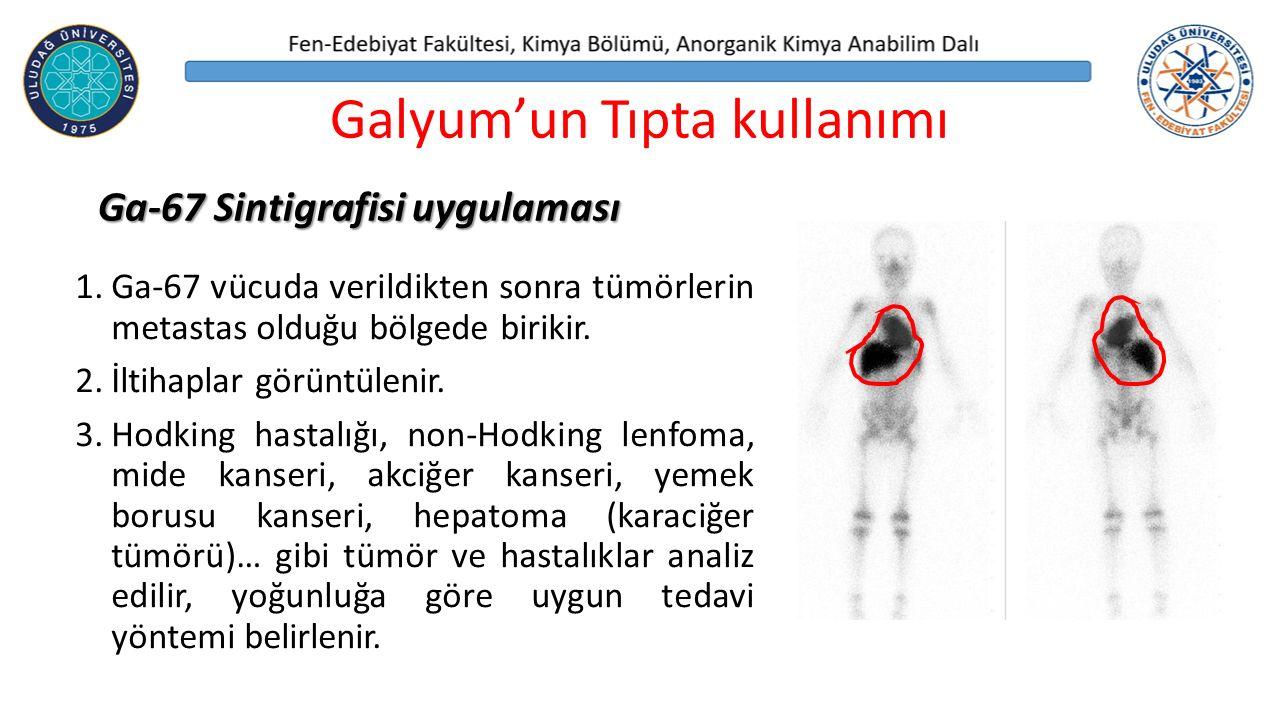 1.Ga-67 vücuda verildikten sonra tümörlerin metastas olduğu bölgede birikir.