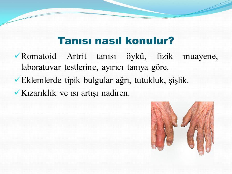 Tanısı nasıl konulur? Romatoid Artrit tanısı öykü, fizik muayene, laboratuvar testlerine, ayırıcı tanıya göre. Eklemlerde tipik bulgular ağrı, tutuklu
