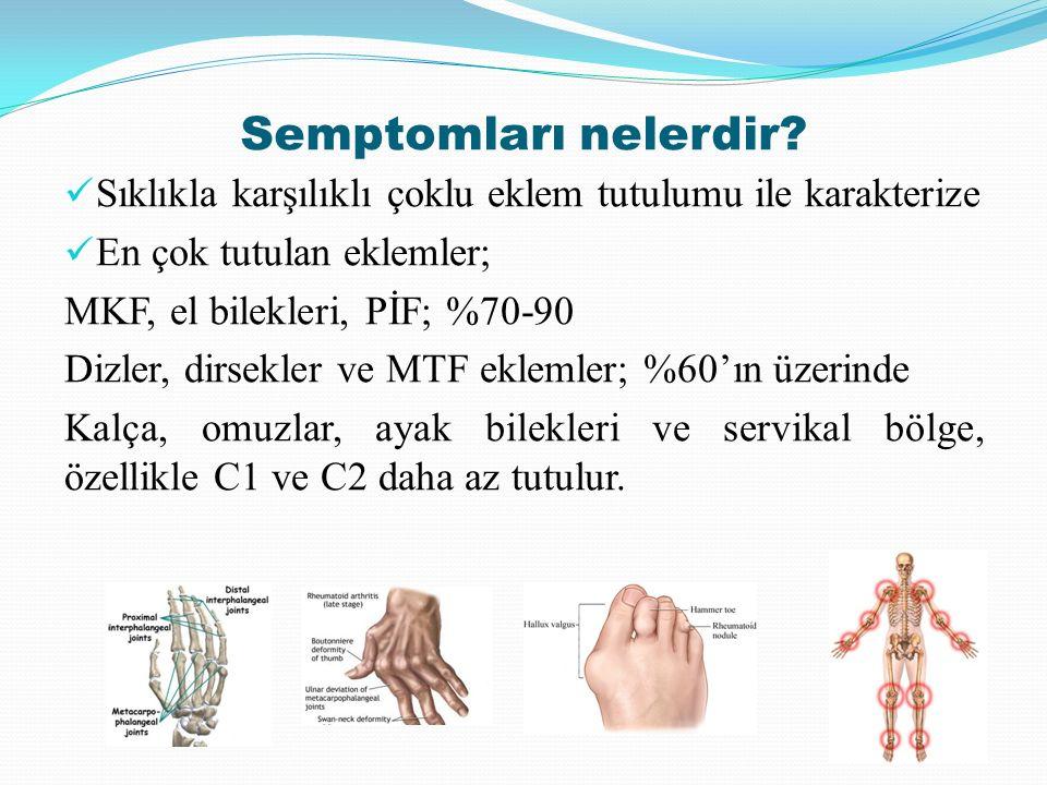 Semptomları nelerdir? Sıklıkla karşılıklı çoklu eklem tutulumu ile karakterize En çok tutulan eklemler; MKF, el bilekleri, PİF; %70-90 Dizler, dirsekl