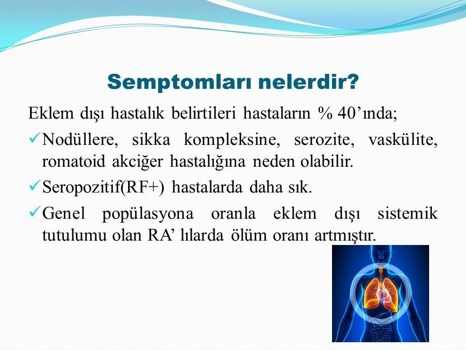 Semptomları nelerdir? Eklem dışı hastalık belirtileri hastaların % 40'ında; Nodüllere, sikka kompleksine, serozite, vaskülite, romatoid akciğer hastal