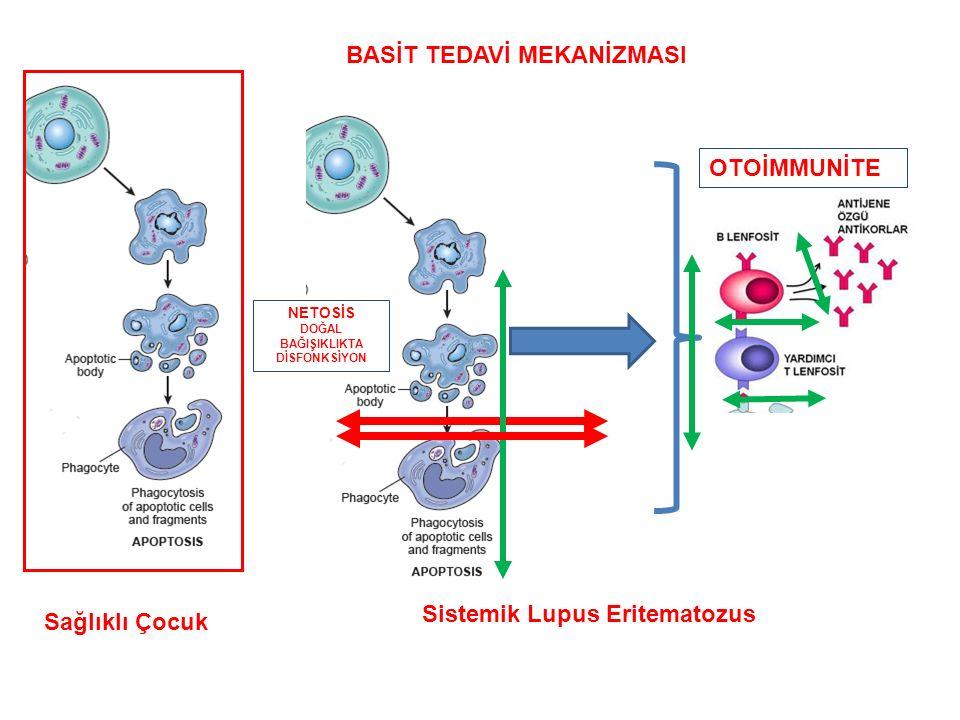 Sağlıklı Çocuk Sistemik Lupus Eritematozus OTOİMMUNİTE BASİT TEDAVİ MEKANİZMASI NETOSİS DOĞAL BAĞIŞIKLIKTA DİSFONKSİYON
