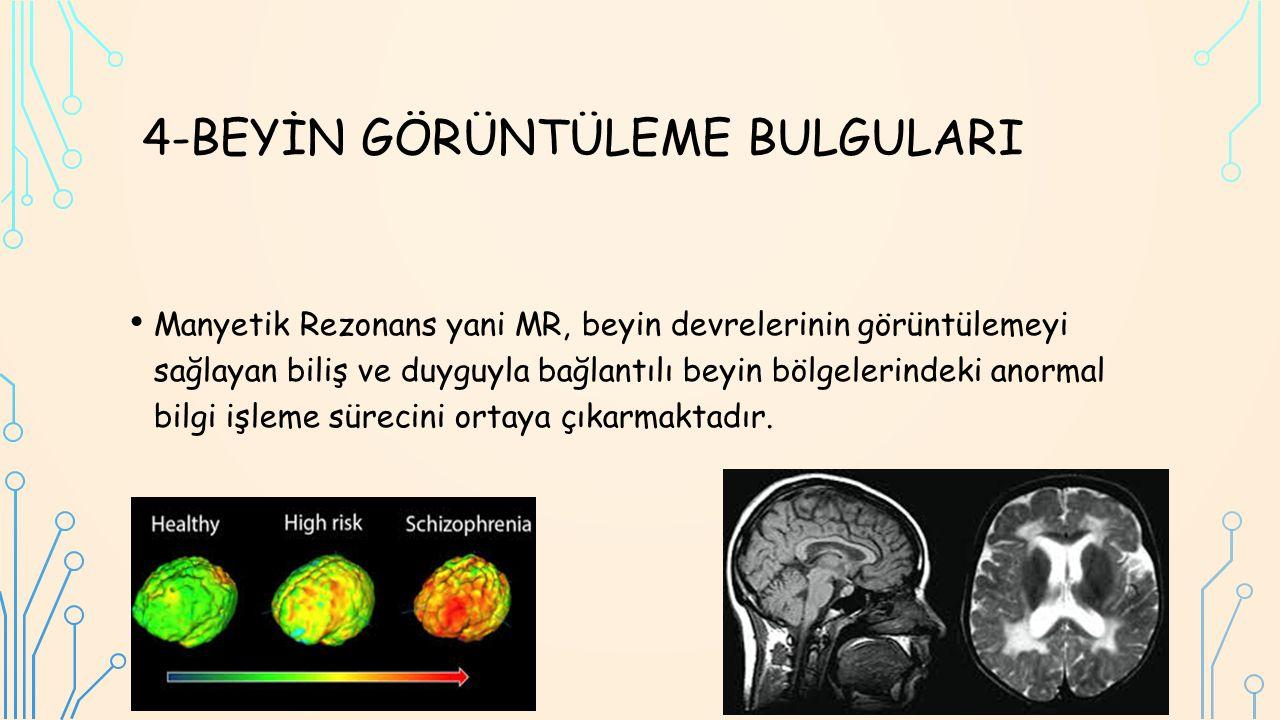 4-BEYİN GÖRÜNTÜLEME BULGULARI Manyetik Rezonans yani MR, beyin devrelerinin görüntülemeyi sağlayan biliş ve duyguyla bağlantılı beyin bölgelerindeki anormal bilgi işleme sürecini ortaya çıkarmaktadır.