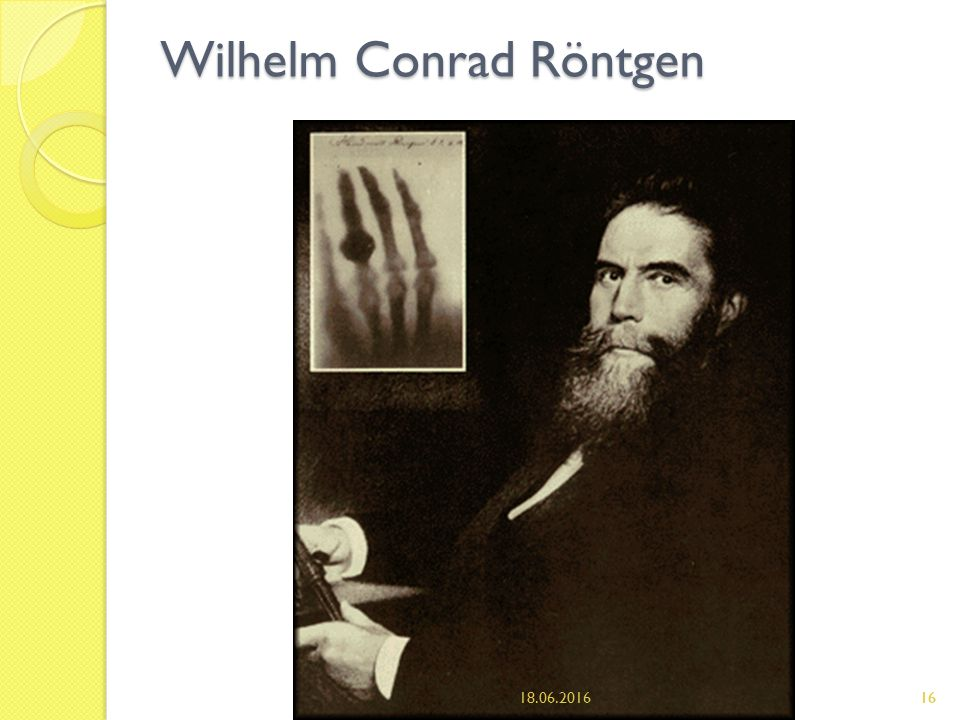 a glimpse into the life of wilhelm conrad roentgen X-ray imaging for palaeontology the medical profession and public at large may have had a glimpse owes a debt of gratitude to wilhelm conrad röntgen.