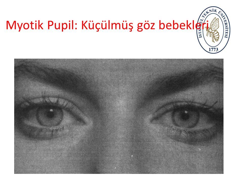 Dilate Pupil: Genişlemiş göz bebeği