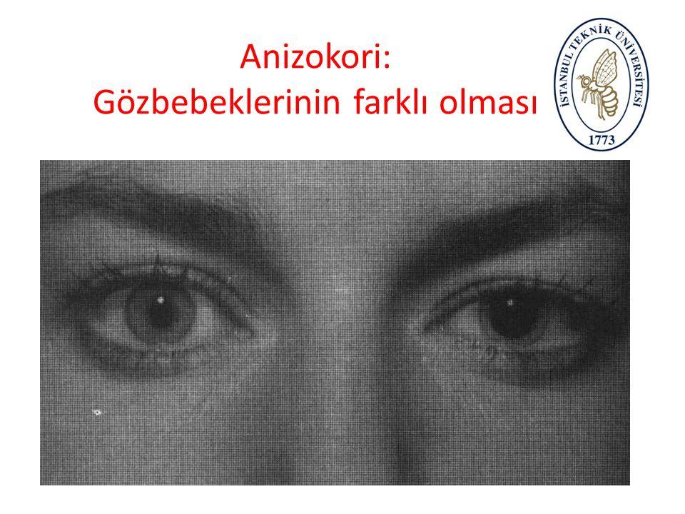 Myotik Pupil: Küçülmüş göz bebekleri
