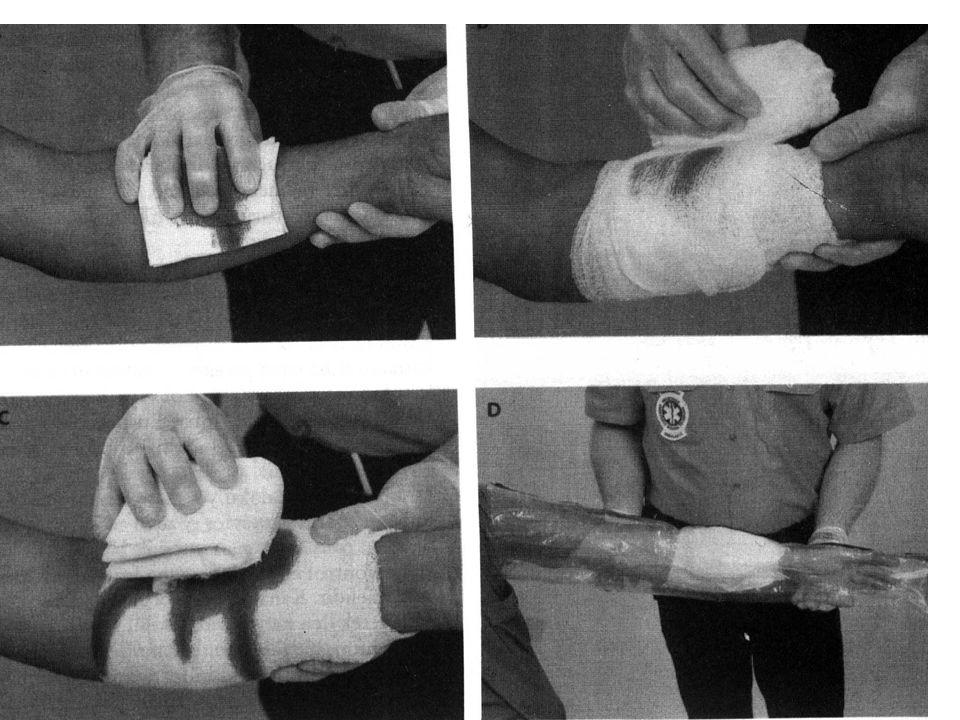 İlkyardım Malzemesi İle Kanama Durdurma Basınçlı sargı. Turnike yöntemi: – En son tercih edilecek yöntemdir. – Tek kemik bölgesine uygulanır. – 5-7 cm