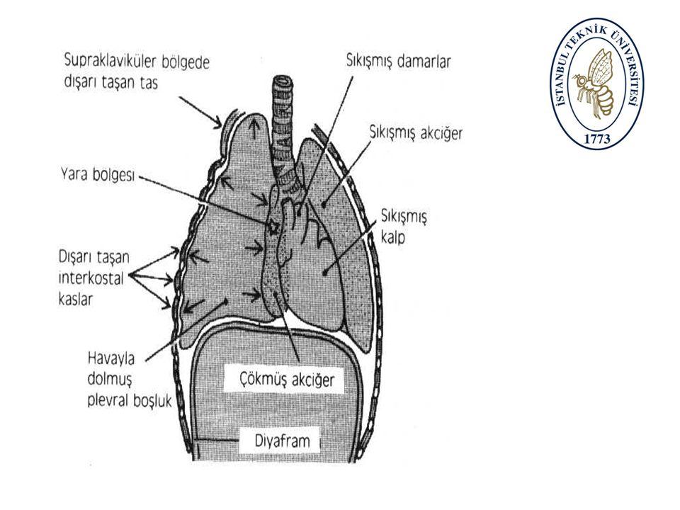 Göğüs yaralanması: Solunum zorluğu;sabit yan pozisyona alınır. Göğüste yara;hemen ıslak sargı ile kapatılır. Şok;şok pozisyonu Saplanmış cisim çıkarıl