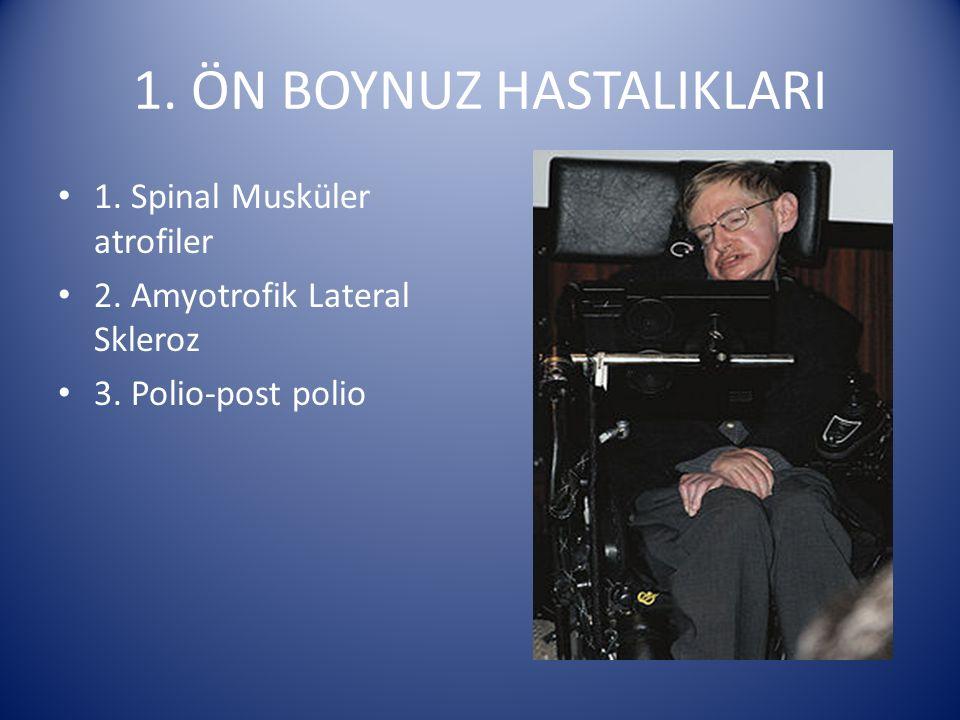 1. ÖN BOYNUZ HASTALIKLARI 1. Spinal Musküler atrofiler 2. Amyotrofik Lateral Skleroz 3. Polio-post polio