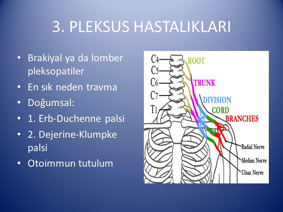 3. PLEKSUS HASTALIKLARI Brakiyal ya da lomber pleksopatiler En sık neden travma Doğumsal: 1. Erb-Duchenne palsi 2. Dejerine-Klumpke palsi Otoimmun tut