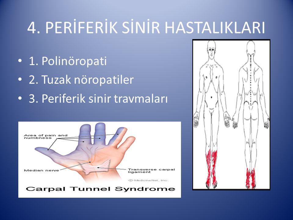 4. PERİFERİK SİNİR HASTALIKLARI 1. Polinöropati 2. Tuzak nöropatiler 3. Periferik sinir travmaları