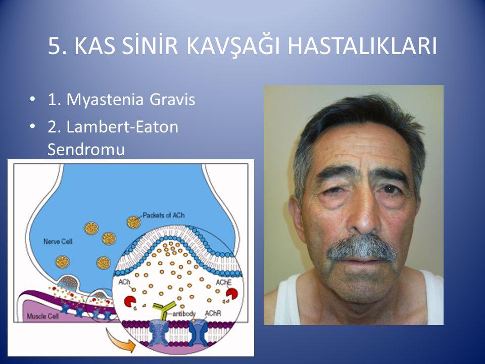5. KAS SİNİR KAVŞAĞI HASTALIKLARI 1. Myastenia Gravis 2. Lambert-Eaton Sendromu