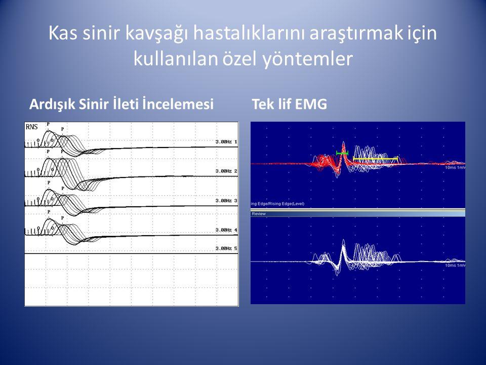 Kas sinir kavşağı hastalıklarını araştırmak için kullanılan özel yöntemler Ardışık Sinir İleti İncelemesiTek lif EMG
