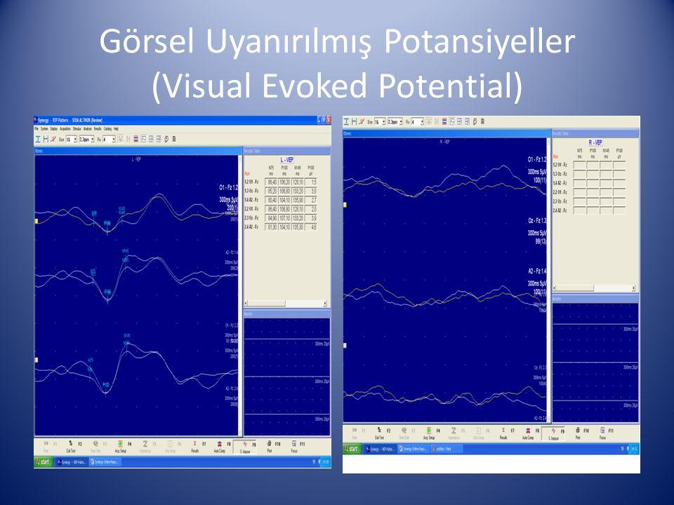 Görsel Uyanırılmış Potansiyeller (Visual Evoked Potential)
