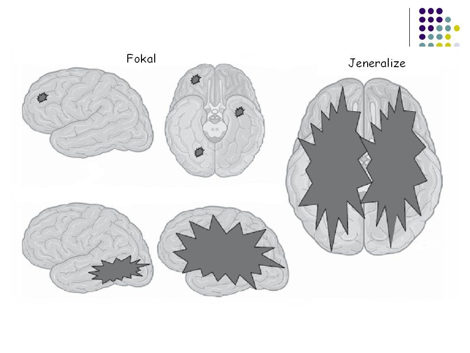 Juvenil Myoklonik Epilepsi (JME)  12-16 yaş sıralarında başlar  Mental ve nörolojik muayeneleri ve yapısal görüntüleme (MRG) genellikle normaldir  Aile öyküsü pozitif olabilir-genetik geçişli ancak sorumlu gen henüz tanımlanmadı  Başlıca nöbet tipleri  Myoklonus  Dalma  JTK  Nöbetleri tetikleyen faktörler  Açlık  Uykusuzluk  Işık  Aşırı alkol alımı  EEG'de eş zamanlı jeneralize çoklu diken dalga deşarjları  Tedavide seçenekler;  Valproate  Lamotrigine  Topiromate  Tedavide Kontrendike durumlar;  Karbamazepin-Okskarbazepin  Vigabatrin  Gabapentin-Pregabalin  Fenitoin  İlaca yanıt çok iyi ancak yaşam boyu tedavi gerekli, ilaç kesince %95-98 nöbetler başlıyor, çok seyrek durumlarda 60 yaşdan sonra kaybolabiliyor