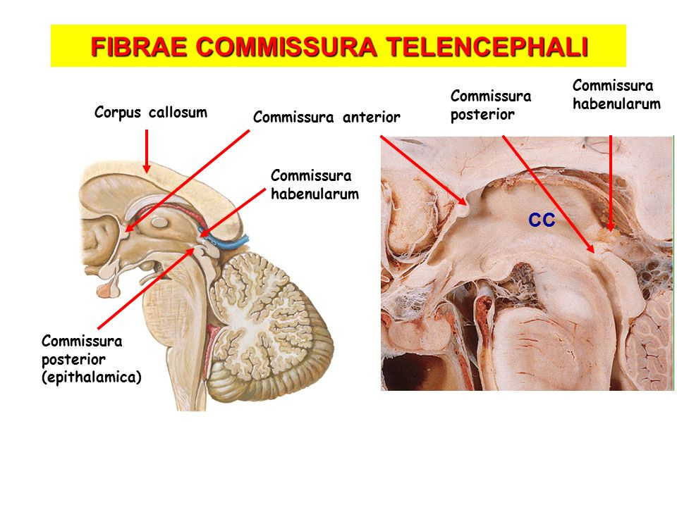 FIBRAE COMMISSURA TELENCEPHALI Commissura posterior Commissura habenularum Commissura anterior Corpus callosum CC Commissura posterior (epithalamica) Commissura habenularum
