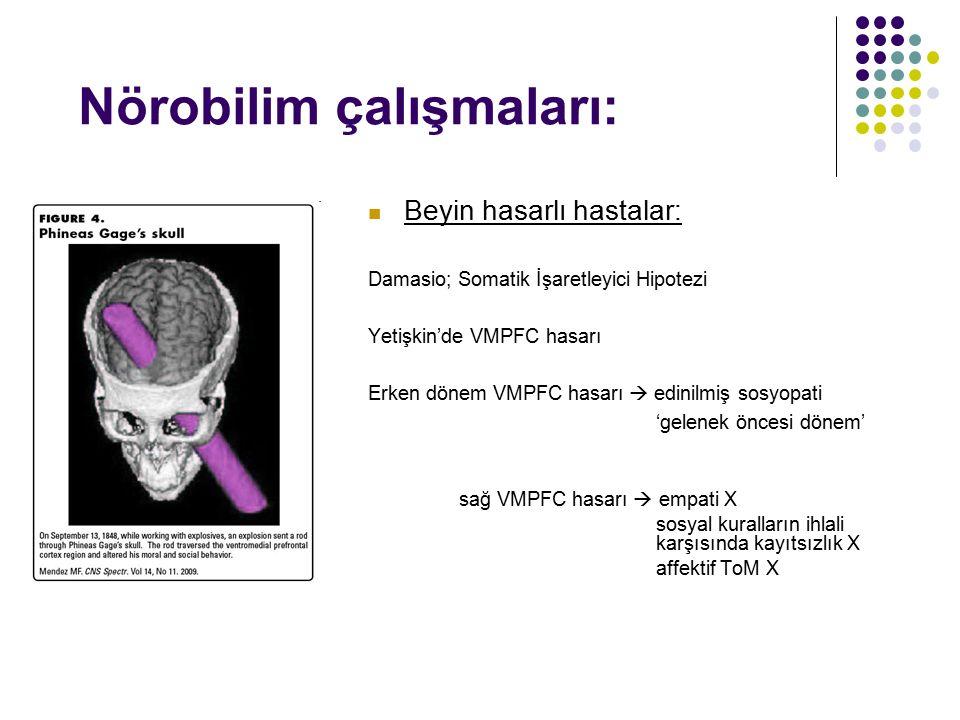 Nörobilim çalışmaları: Beyin hasarlı hastalar: Damasio; Somatik İşaretleyici Hipotezi Yetişkin'de VMPFC hasarı Erken dönem VMPFC hasarı  edinilmiş so