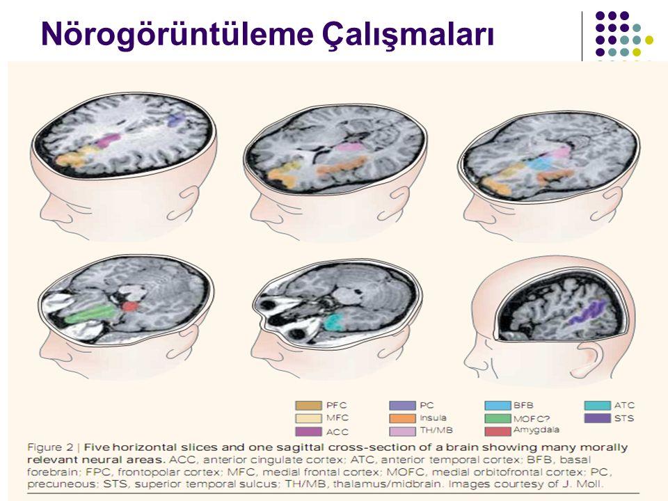 Nörogörüntüleme Çalışmaları