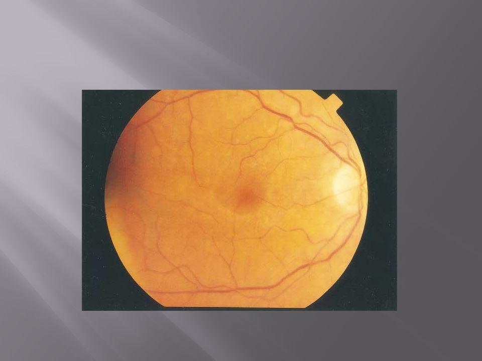  Toksisite mekanizması bilinmiyor;  Retina pigment epitelinin fagositik fonksiyonunu bozuyor.