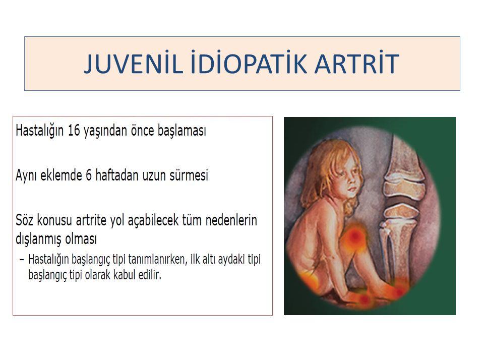 JUVENİL İDİOPATİK ARTRİT