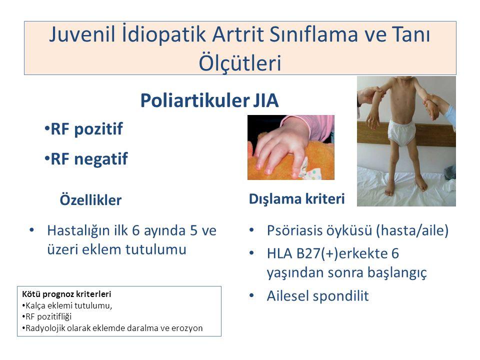 Poliartikuler JIA RF pozitif RF negatif Hastalığın ilk 6 ayında 5 ve üzeri eklem tutulumu Dışlama kriteri Psöriasis öyküsü (hasta/aile) HLA B27(+)erke