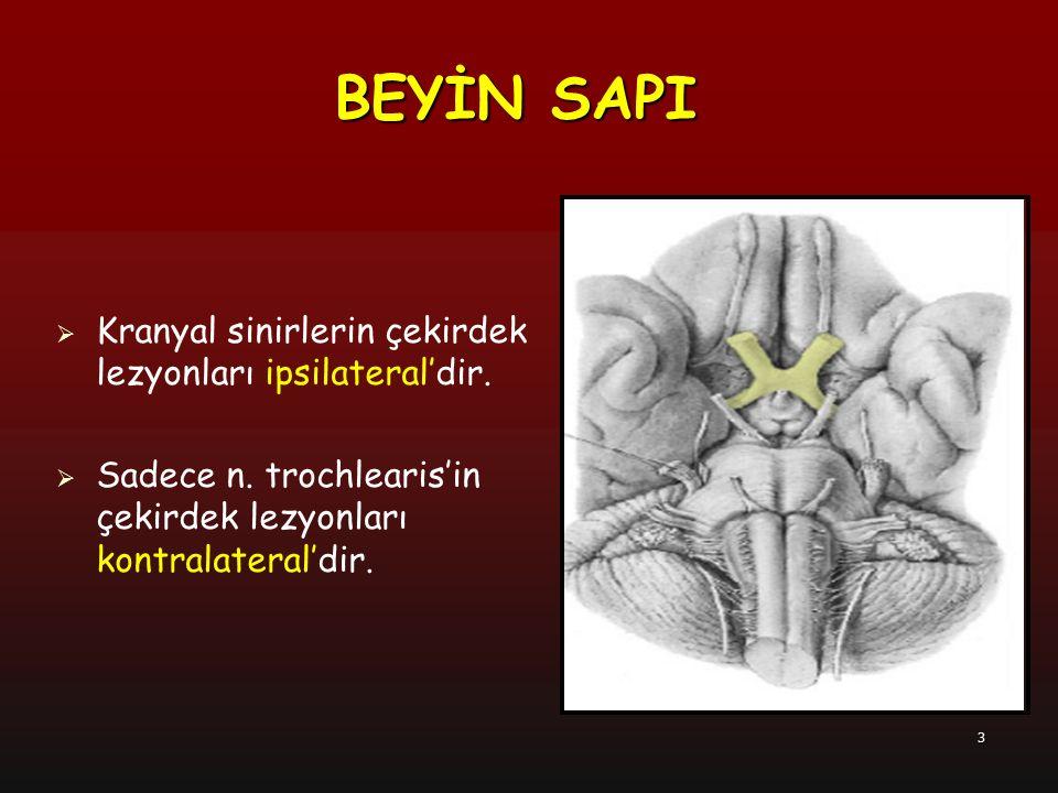 3  Kranyal sinirlerin çekirdek lezyonları ipsilateral'dir.  Sadece n. trochlearis'in çekirdek lezyonları kontralateral'dir. BEYİN SAPI