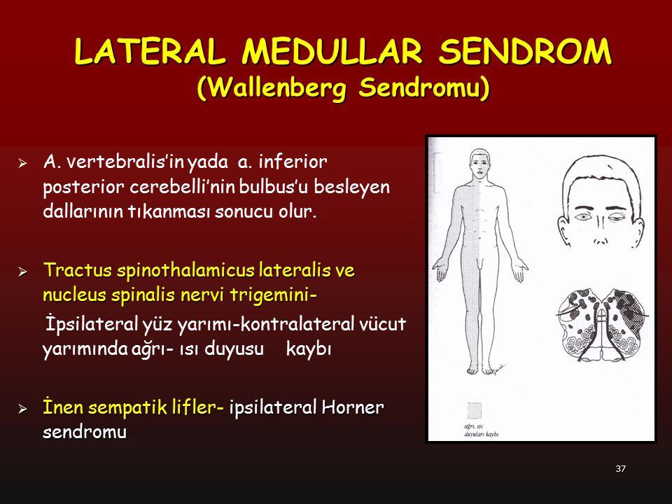 37  A. v ertebralis'in yada a. inferior posterior cerebelli'nin bulbus'u besleyen dallarının tıkanması sonucu olur.  Tractus spinothalamicus lateral