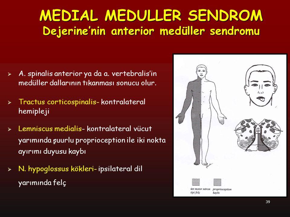 39 MEDIAL MEDULLER SENDROM Dejerine'nin anterior medüller sendromu  A. spinalis anterior ya da a. vertebralis'in medüller dallarının tıkanması sonucu