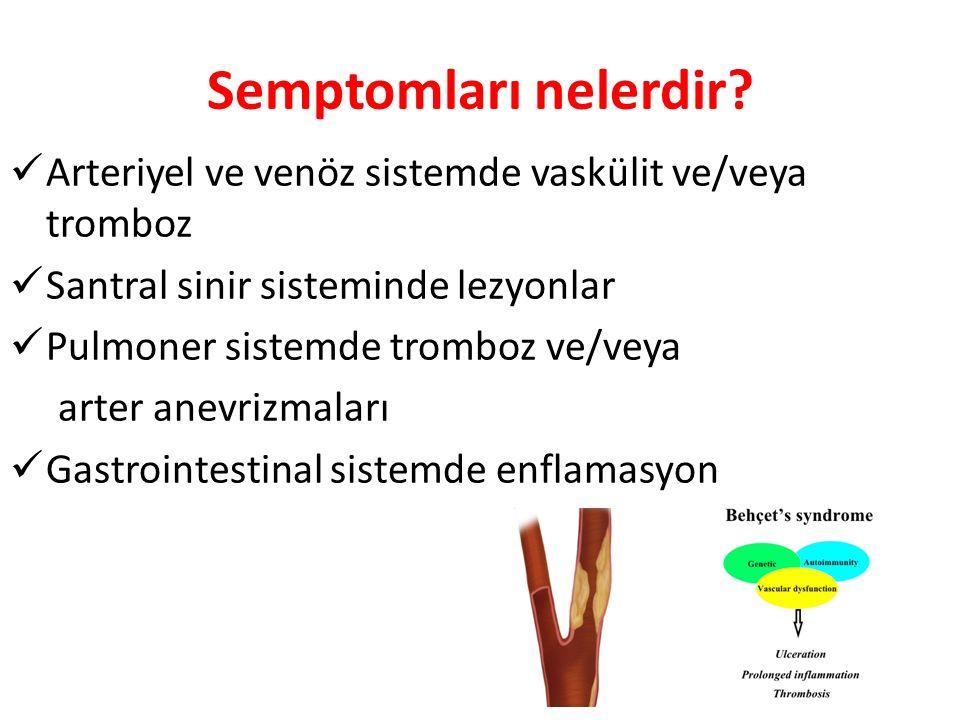 Semptomları nelerdir? Arteriyel ve venöz sistemde vaskülit ve/veya tromboz Santral sinir sisteminde lezyonlar Pulmoner sistemde tromboz ve/veya arter