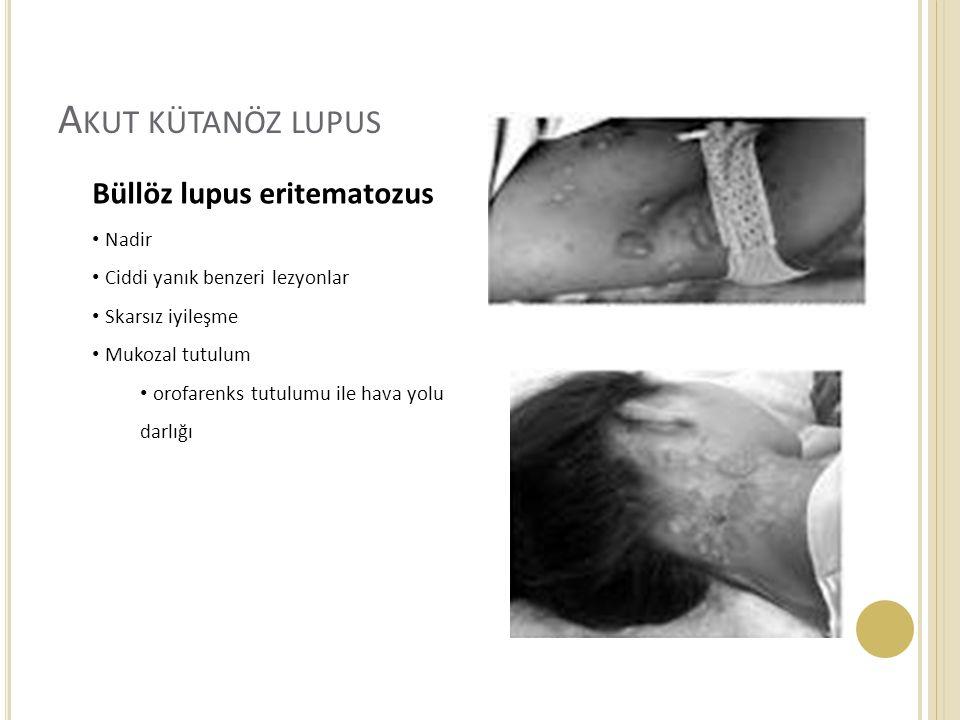 A KUT KÜTANÖZ LUPUS Büllöz lupus eritematozus Nadir Ciddi yanık benzeri lezyonlar Skarsız iyileşme Mukozal tutulum orofarenks tutulumu ile hava yolu darlığı