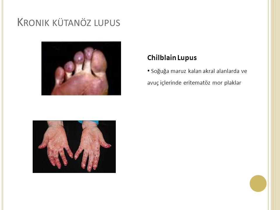 K RONIK KÜTANÖZ LUPUS Chilblain Lupus Soğuğa maruz kalan akral alanlarda ve avuç içlerinde eritematöz mor plaklar
