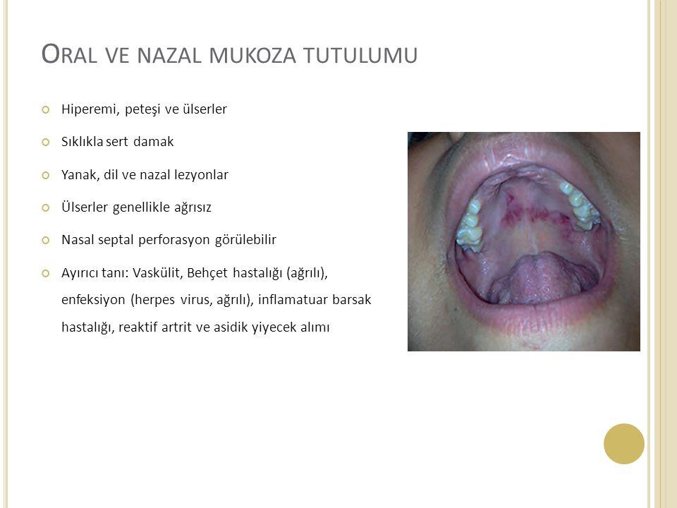O RAL VE NAZAL MUKOZA TUTULUMU Hiperemi, peteşi ve ülserler Sıklıkla sert damak Yanak, dil ve nazal lezyonlar Ülserler genellikle ağrısız Nasal septal