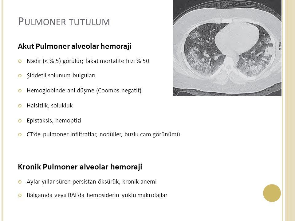 P ULMONER TUTULUM Akut Pulmoner alveolar hemoraji Nadir (< % 5) görülür; fakat mortalite hızı % 50 Şiddetli solunum bulguları Hemoglobinde ani düşme (Coombs negatif) Halsizlik, solukluk Epistaksis, hemoptizi CT'de pulmoner infiltratlar, nodüller, buzlu cam görünümü Kronik Pulmoner alveolar hemoraji Aylar yıllar süren persistan öksürük, kronik anemi Balgamda veya BAL'da hemosiderin yüklü makrofajlar