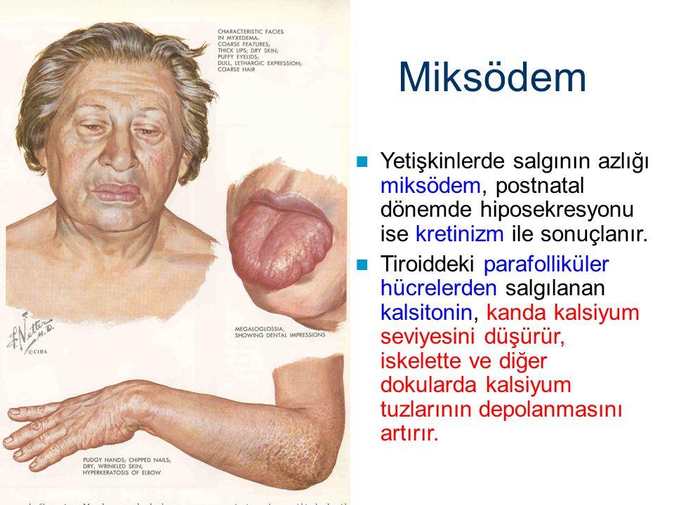 Miksödem Yetişkinlerde salgının azlığı miksödem, postnatal dönemde hiposekresyonu ise kretinizm ile sonuçlanır. Tiroiddeki parafolliküler hücrelerden