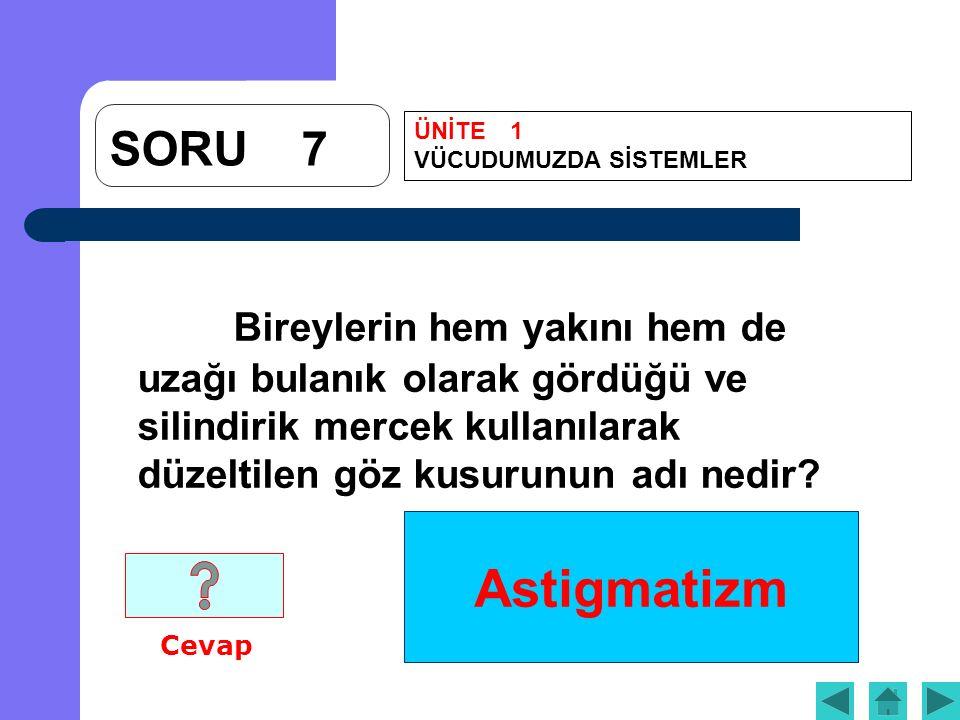 Astigmatizm SORU7 Bireylerin hem yakını hem de uzağı bulanık olarak gördüğü ve silindirik mercek kullanılarak düzeltilen göz kusurunun adı nedir.