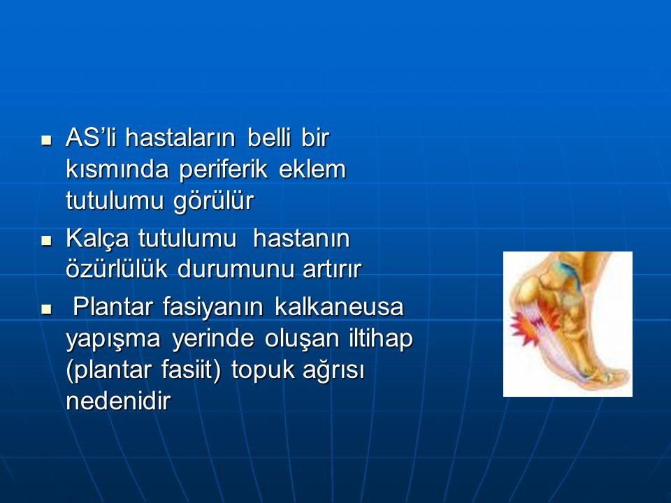 AS'li hastaların belli bir kısmında periferik eklem tutulumu görülür AS'li hastaların belli bir kısmında periferik eklem tutulumu görülür Kalça tutulumu hastanın özürlülük durumunu artırır Kalça tutulumu hastanın özürlülük durumunu artırır Plantar fasiyanın kalkaneusa yapışma yerinde oluşan iltihap (plantar fasiit) topuk ağrısı nedenidir Plantar fasiyanın kalkaneusa yapışma yerinde oluşan iltihap (plantar fasiit) topuk ağrısı nedenidir