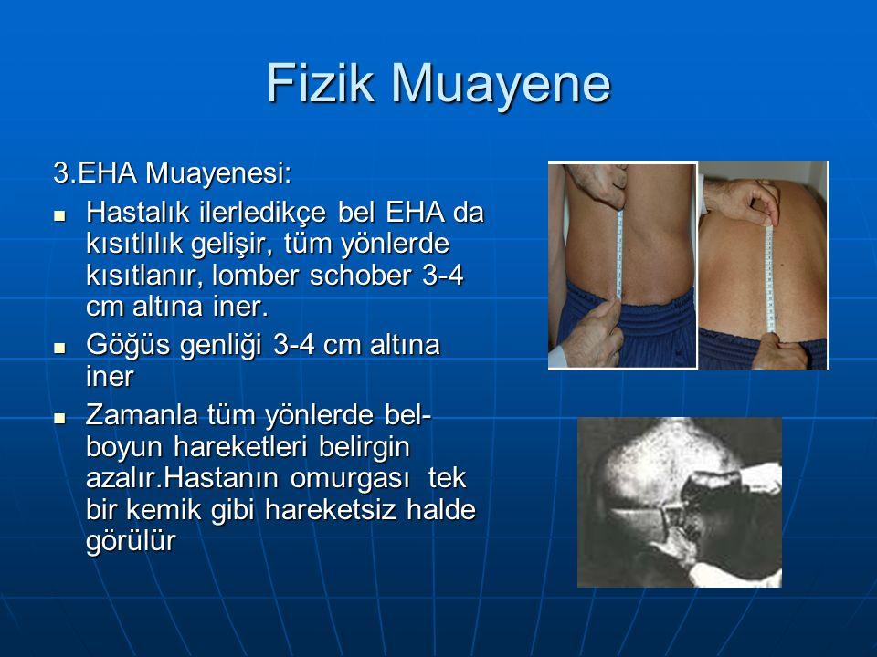 Fizik Muayene 3.EHA Muayenesi: Hastalık ilerledikçe bel EHA da kısıtlılık gelişir, tüm yönlerde kısıtlanır, lomber schober 3-4 cm altına iner.