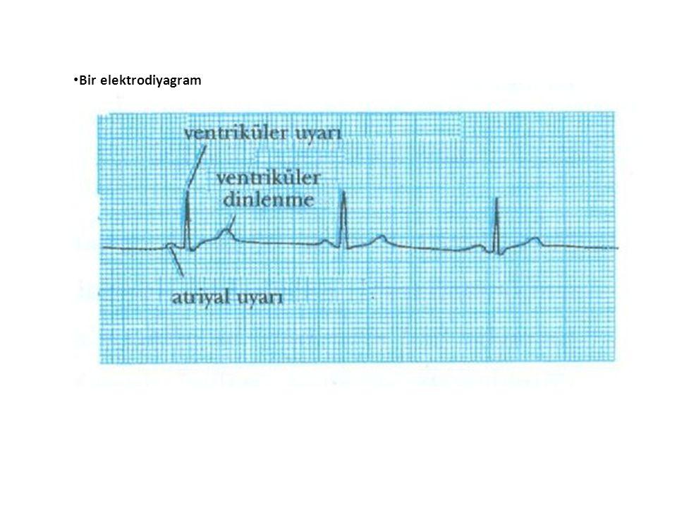 Bir elektrodiyagram