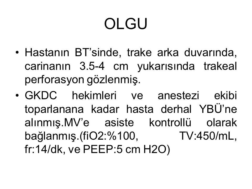 OLGU Hastanın BT'sinde, trake arka duvarında, carinanın 3.5-4 cm yukarısında trakeal perforasyon gözlenmiş.