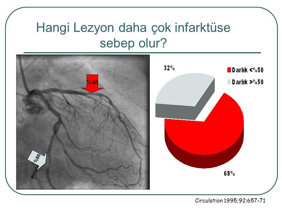 Hangi Lezyon daha çok infarktüse sebep olur? %40 %80 Circulation 1995;92:657-71