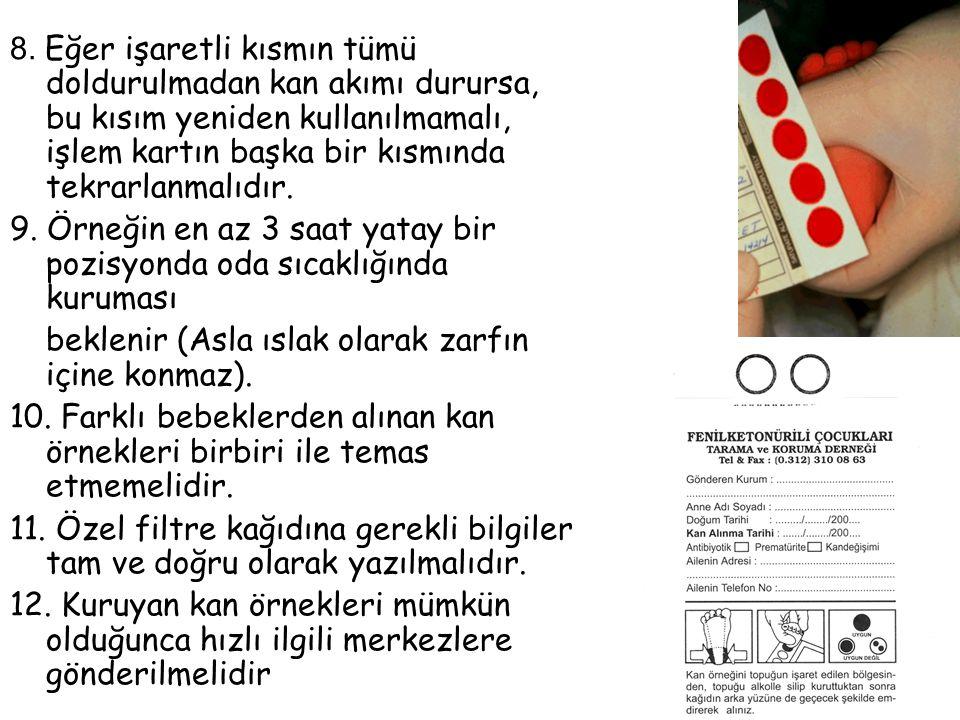 8. Eğer işaretli kısmın tümü doldurulmadan kan akımı durursa, bu kısım yeniden kullanılmamalı, işlem kartın başka bir kısmında tekrarlanmalıdır. 9. Ör
