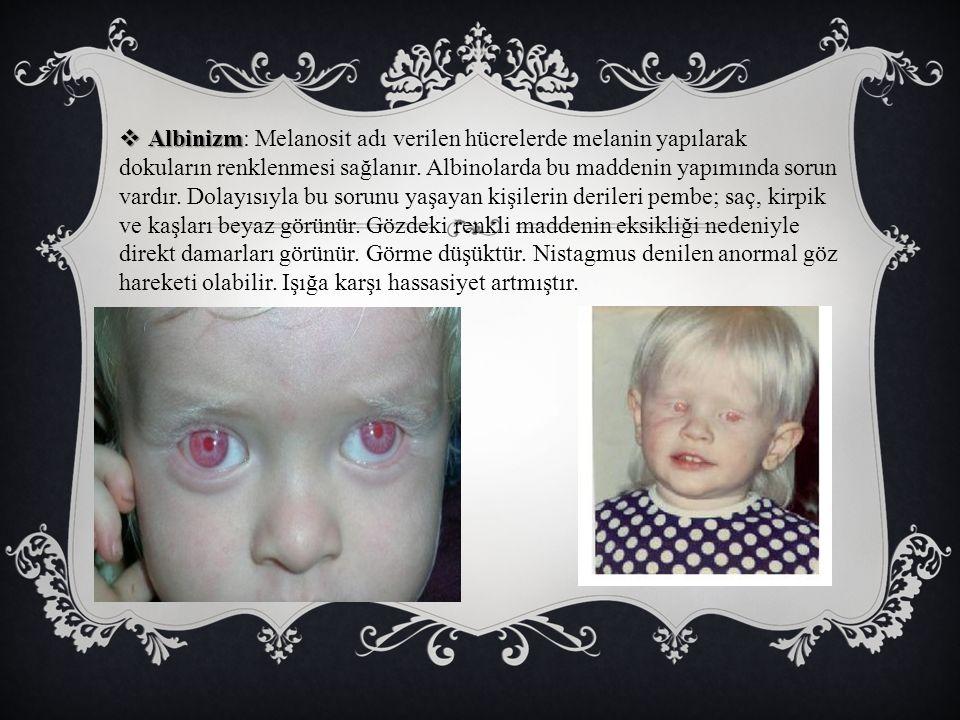  Albinizm  Albinizm: Melanosit adı verilen hücrelerde melanin yapılarak dokuların renklenmesi sağlanır. Albinolarda bu maddenin yapımında sorun vard